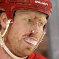 After-being-injured-in-the-first-period-detroits-johan-franzen-came-back-out-in-the-second-period-with-a-bruised-and-bandaged-face